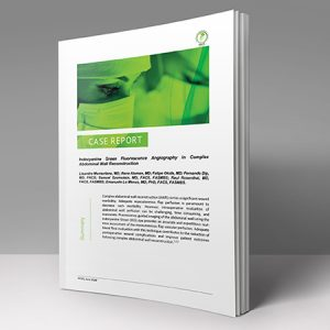 Indocyanine Green use in Fluorescence Guided Surgery