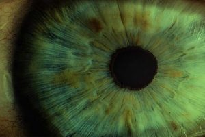 The-Impact-of-COVID-19-on-Acute-and-Elective-Corneal-Surgery-at-Moorfields-Eye-Hospital-London